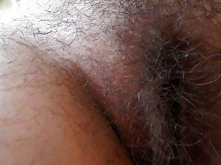 털이 많은