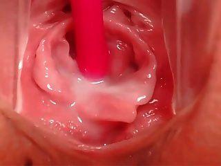 임신 한 음부의 내부 모습